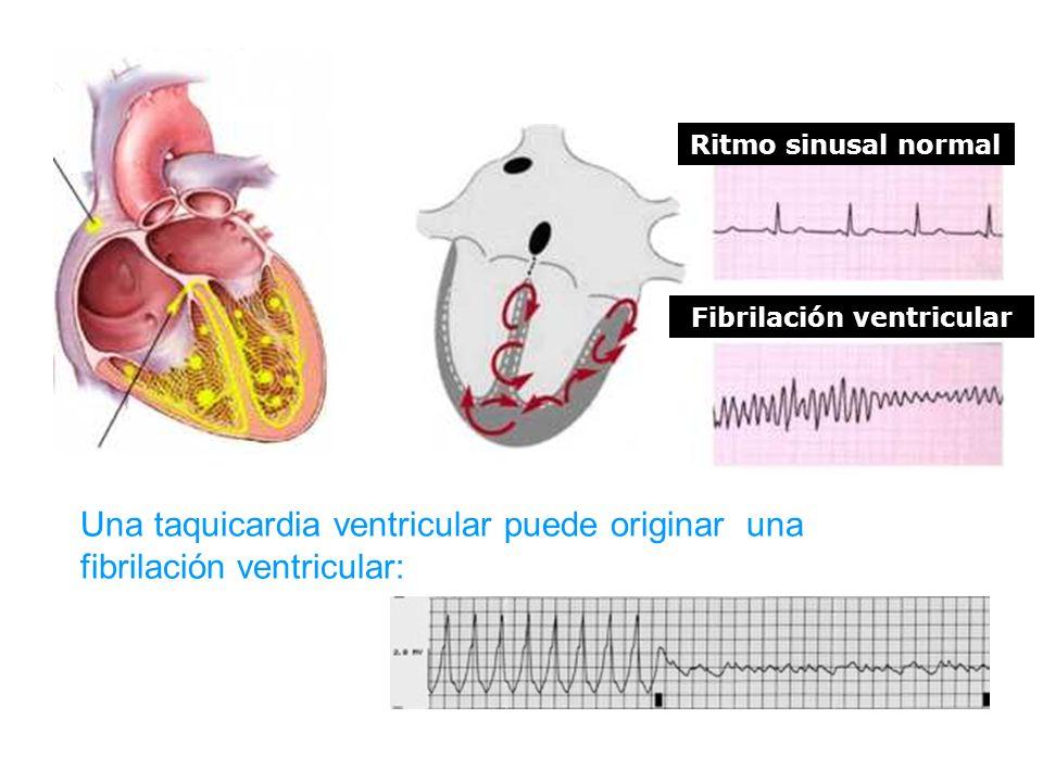 Ritmo sinusal normal Fibrilación ventricular Una taquicardia ventricular puede originar una fibrilación ventricular: