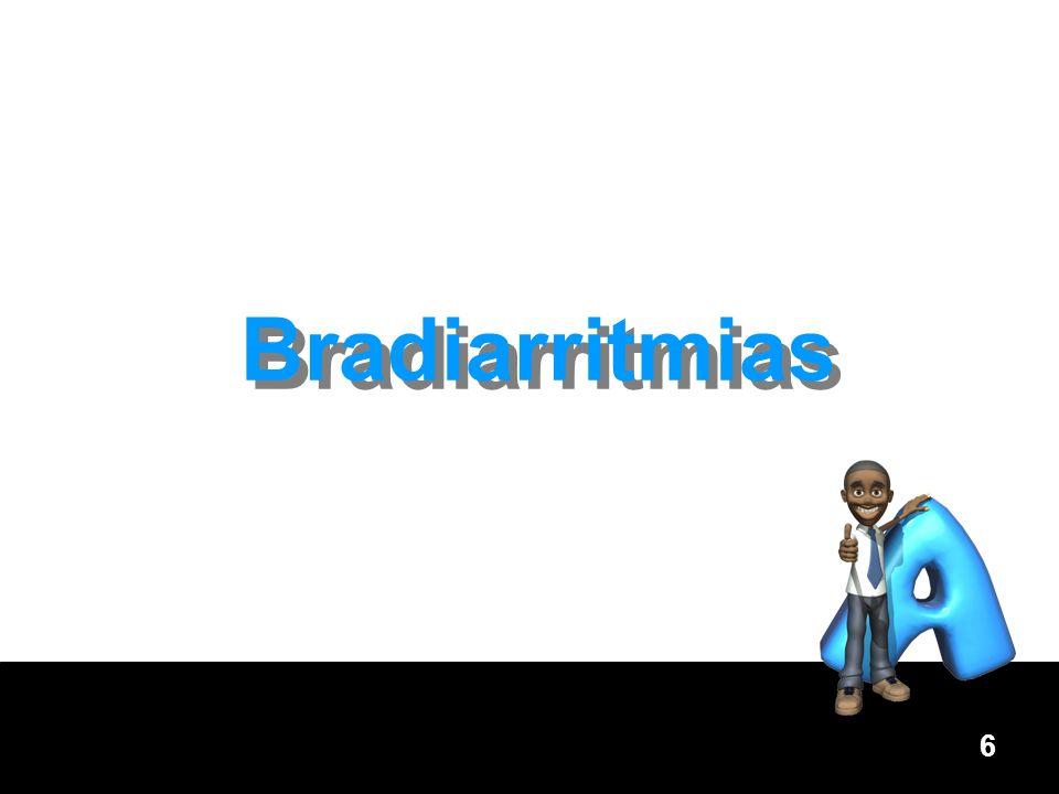 7 Bradicardia sintomática Presencia de una frecuencia cardiaca < 60 lpm.