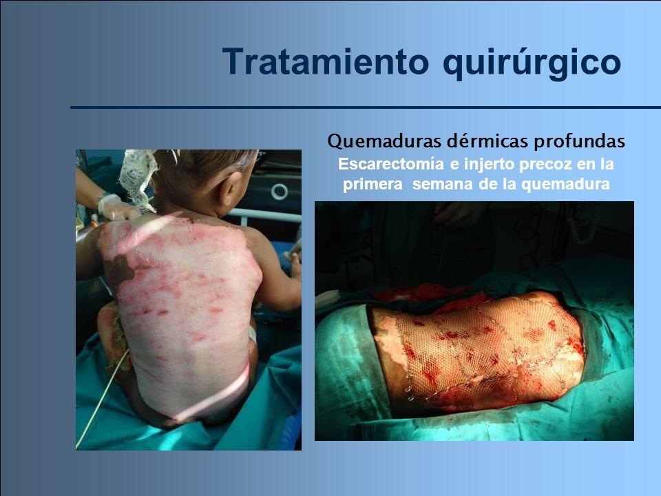 Tratamiento quirúrgico Quemaduras dérmicas profundas Escarectomía e injerto precoz en la primera semana de la quemadura