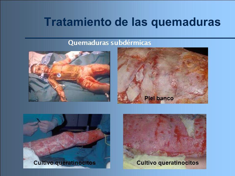 Tratamiento de las quemaduras Quemaduras subdérmicas Cultivo queratinocitos Piel banco