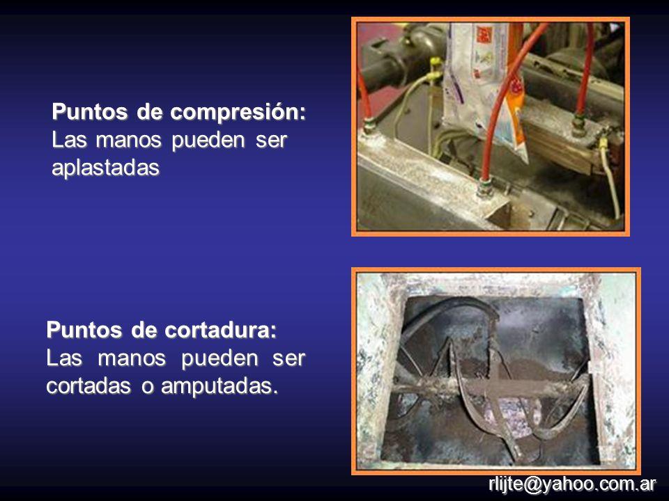 Puntos de cortadura: Las manos pueden ser cortadas o amputadas. Puntos de compresión: Las manos pueden ser aplastadas rlijte@yahoo.com.ar