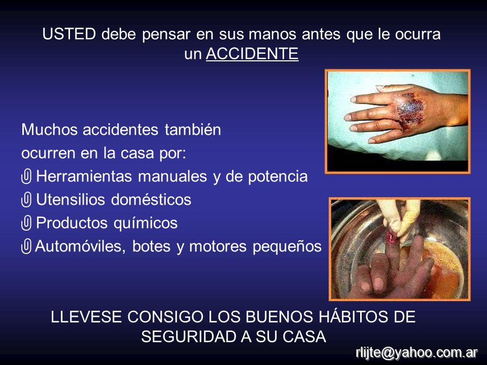 USTED debe pensar en sus manos antes que le ocurra un ACCIDENTE Muchos accidentes también ocurren en la casa por: Herramientas manuales y de potencia