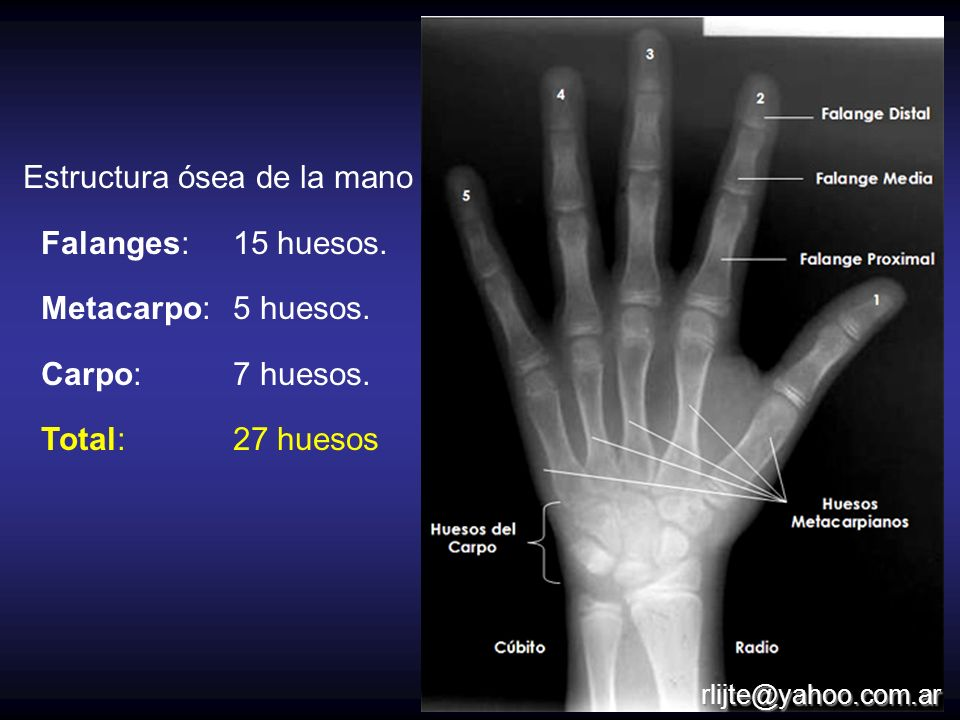 Estructura ósea de la mano Falanges: 15 huesos. Metacarpo: 5 huesos. Carpo:7 huesos. Total: 27 huesos rlijte@yahoo.com.ar
