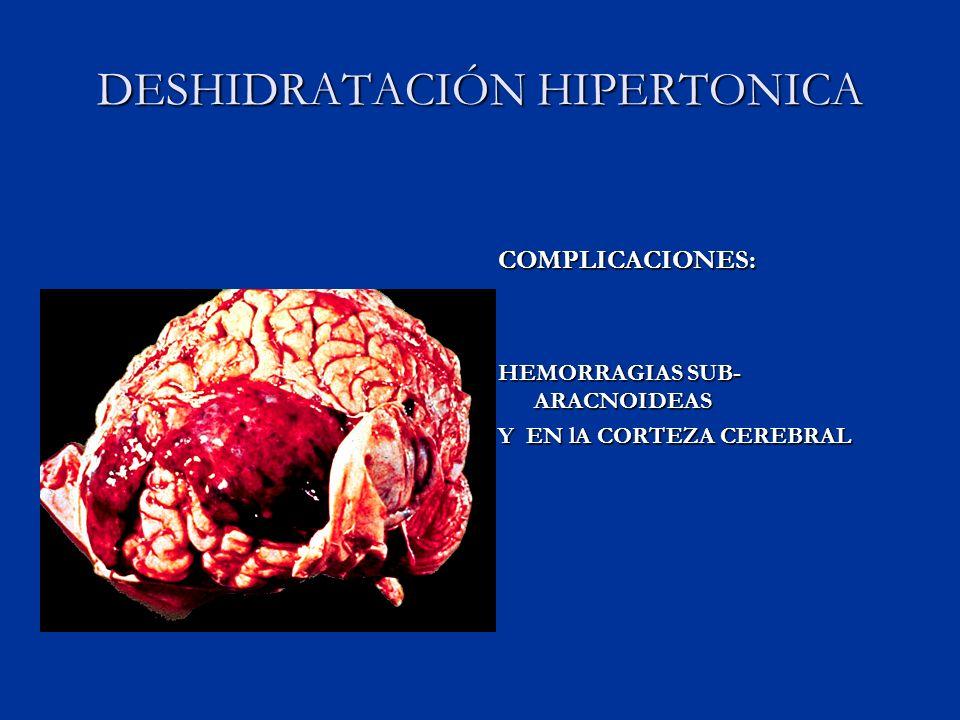 DESHIDRATACIÓN HIPERTONICA COMPLICACIONES: HEMORRAGIAS SUB- ARACNOIDEAS Y EN lA CORTEZA CEREBRAL