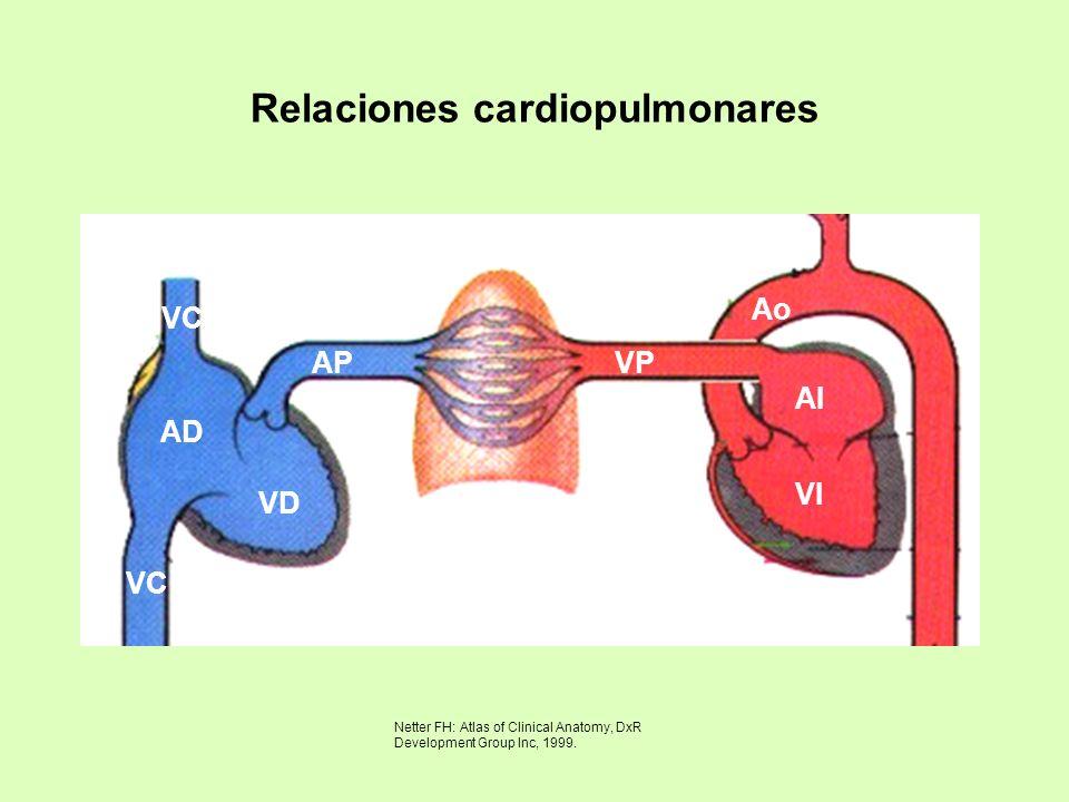 Relaciones cardiopulmonares AD VD APVP AI VI Ao VC Netter FH: Atlas of Clinical Anatomy, DxR Development Group Inc, 1999.