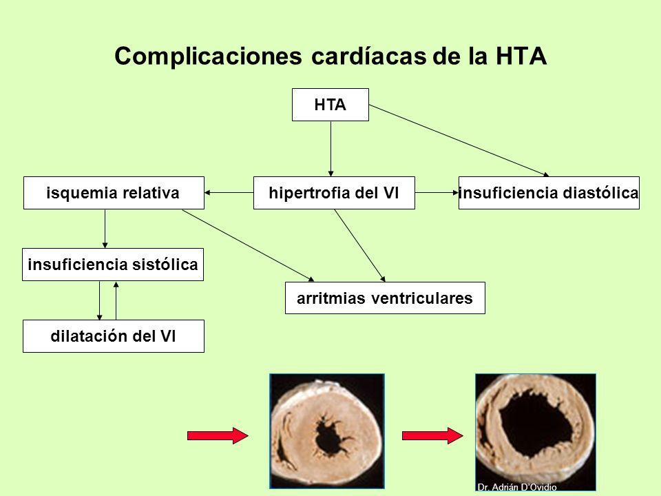 Complicaciones cardíacas de la HTA HTA insuficiencia sistólica insuficiencia diastólica arritmias ventriculares isquemia relativa hipertrofia del VI d