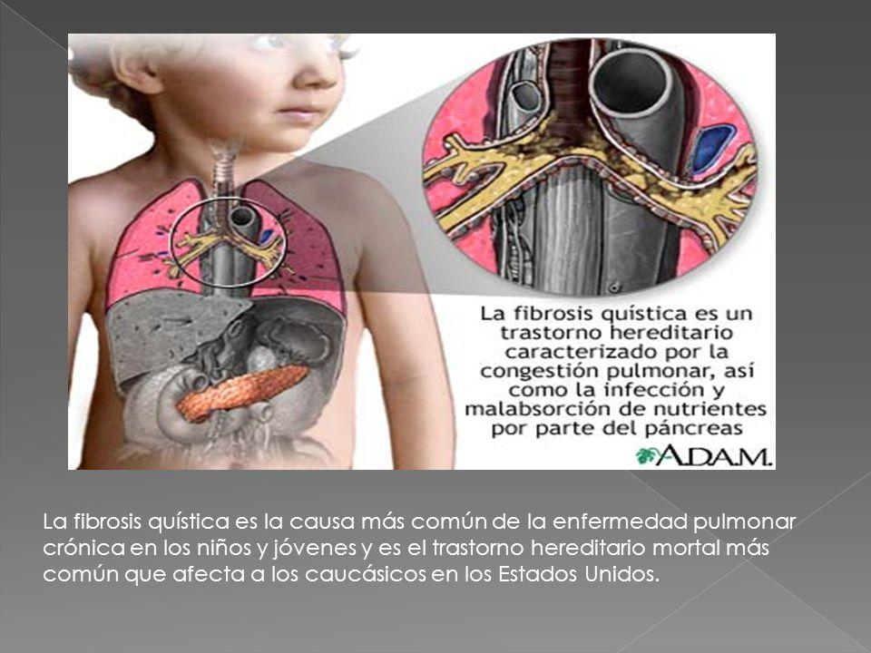 La fibrosis quística es la causa más común de la enfermedad pulmonar crónica en los niños y jóvenes y es el trastorno hereditario mortal más común que