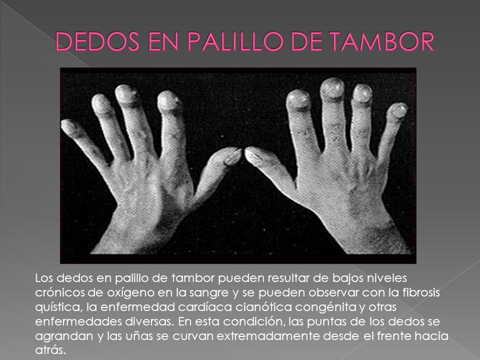 Los dedos en palillo de tambor pueden resultar de bajos niveles crónicos de oxígeno en la sangre y se pueden observar con la fibrosis quística, la enf