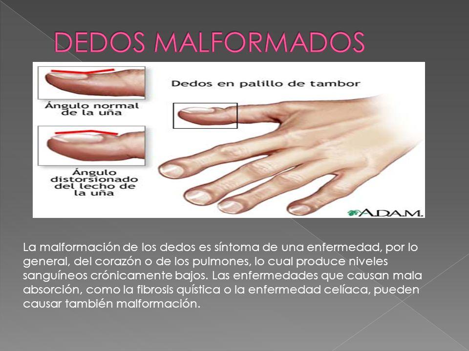 La malformación de los dedos es síntoma de una enfermedad, por lo general, del corazón o de los pulmones, lo cual produce niveles sanguíneos crónicame