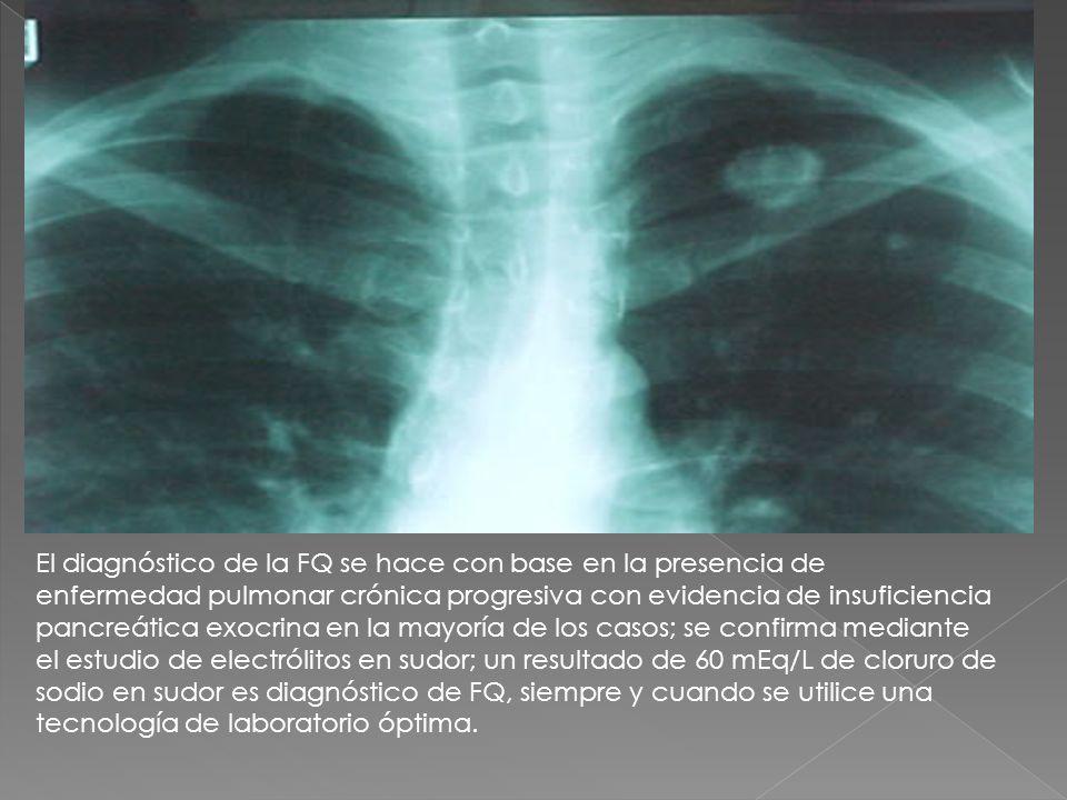 El diagnóstico de la FQ se hace con base en la presencia de enfermedad pulmonar crónica progresiva con evidencia de insuficiencia pancreática exocrina