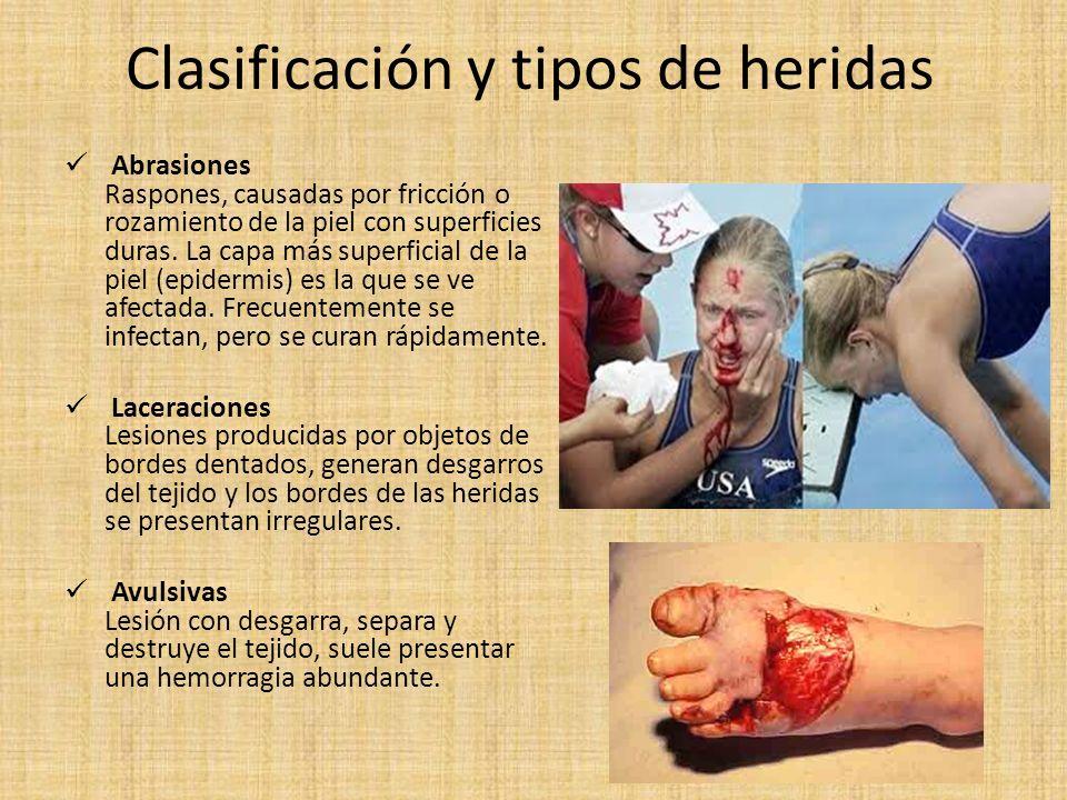 Clasificación y tipos de heridas Abrasiones Raspones, causadas por fricción o rozamiento de la piel con superficies duras. La capa más superficial de