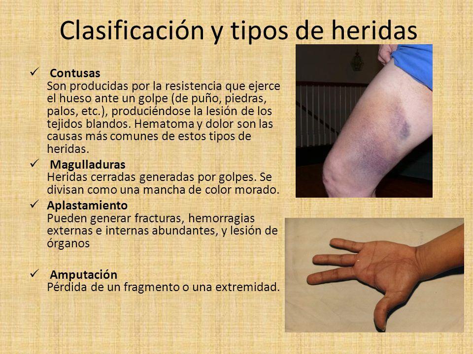 Clasificación y tipos de heridas Contusas Son producidas por la resistencia que ejerce el hueso ante un golpe (de puño, piedras, palos, etc.), produci