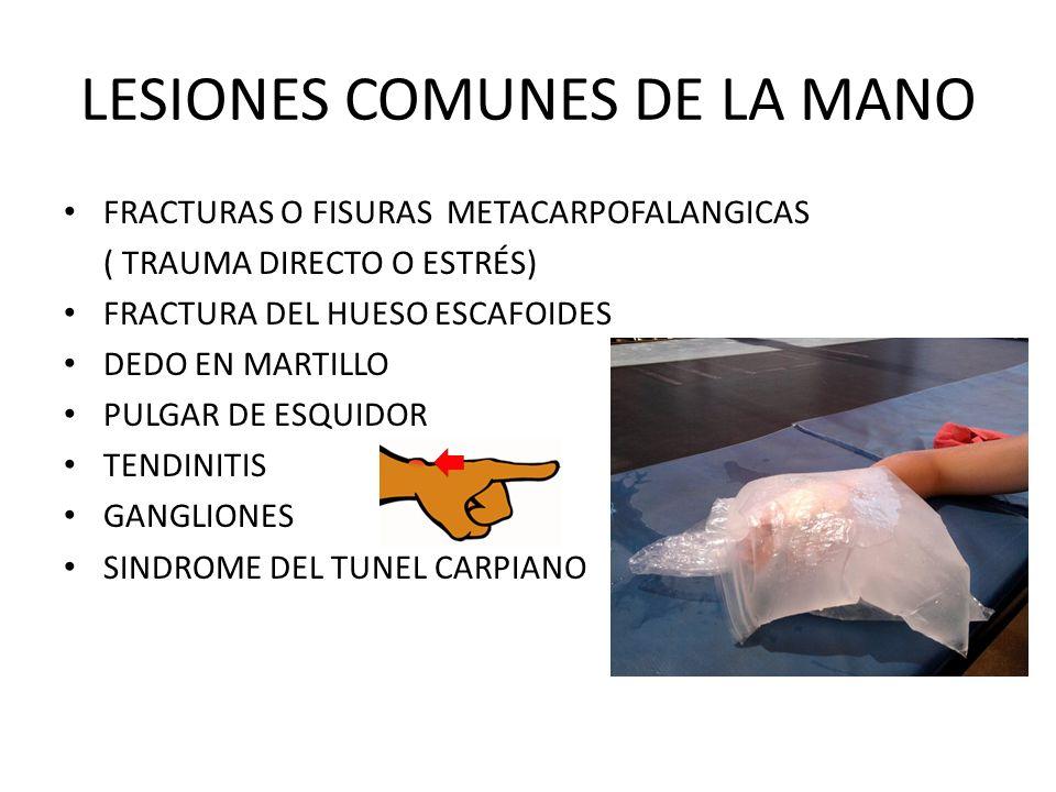 LESIONES COMUNES DE LA MANO FRACTURAS O FISURAS METACARPOFALANGICAS ( TRAUMA DIRECTO O ESTRÉS) FRACTURA DEL HUESO ESCAFOIDES DEDO EN MARTILLO PULGAR D