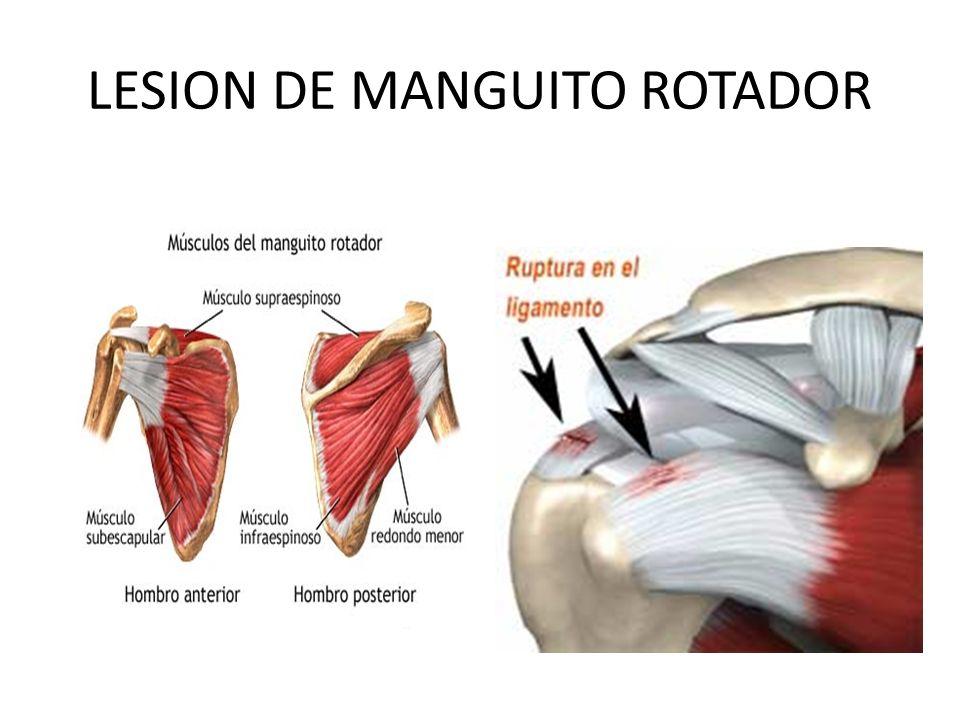 LESION DE MANGUITO ROTADOR