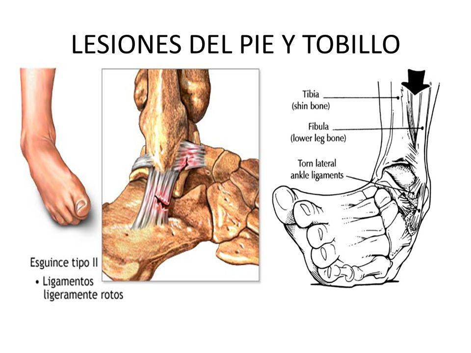 LESIONES DEL PIE Y TOBILLO