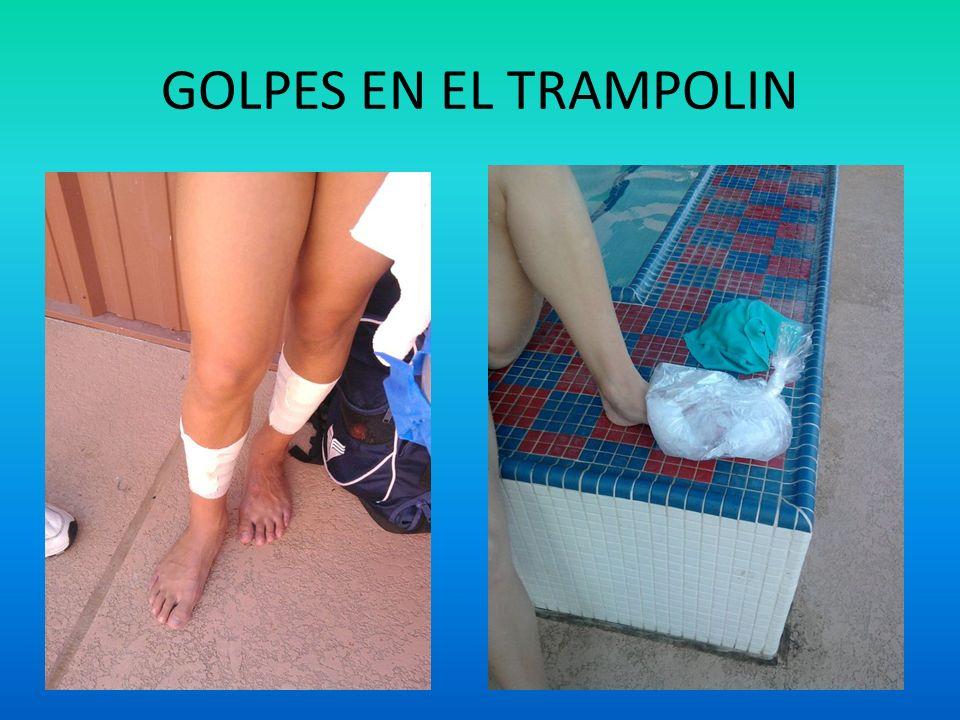 GOLPES EN EL TRAMPOLIN