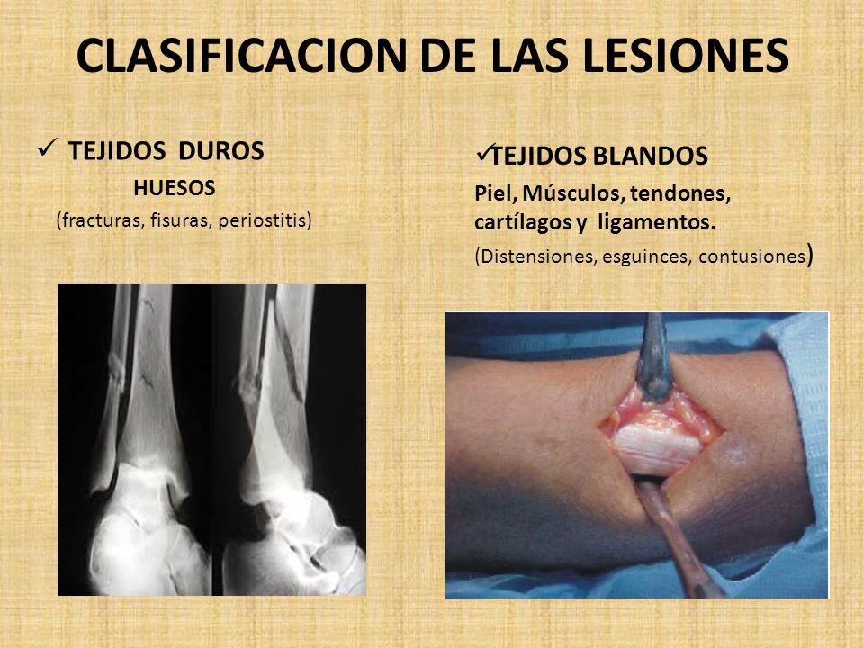 CLASIFICACION DE LAS LESIONES TEJIDOS DUROS HUESOS (fracturas, fisuras, periostitis) TEJIDOS BLANDOS Piel, Músculos, tendones, cartílagos y ligamentos