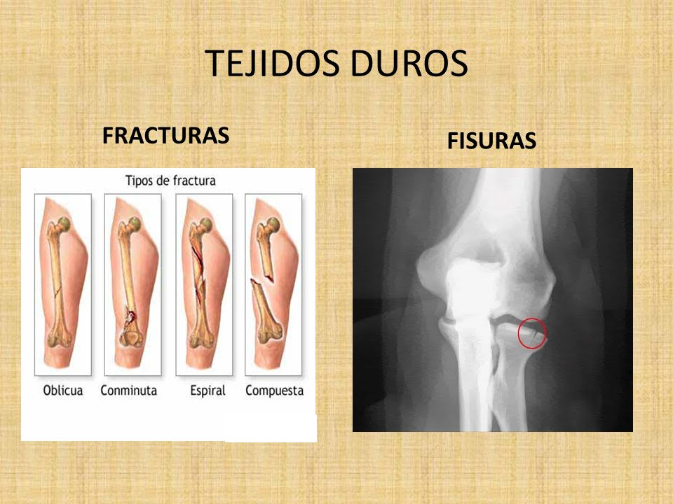 TEJIDOS DUROS FRACTURAS FISURAS