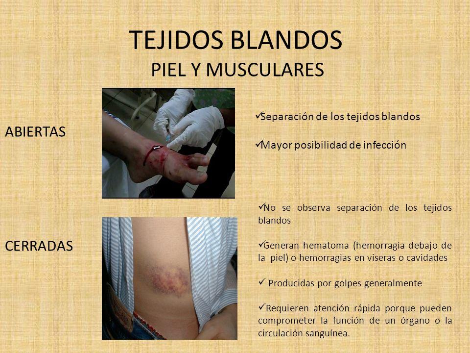 TEJIDOS BLANDOS SIMPLES COMPLICADAS Afectan únicamente la piel no alcanzan a comprometer órganos Raspones, arañazos, cortes superficiales.