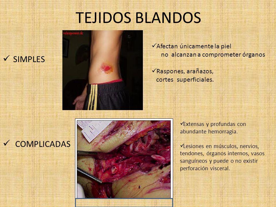 TEJIDOS BLANDOS SIMPLES COMPLICADAS Afectan únicamente la piel no alcanzan a comprometer órganos Raspones, arañazos, cortes superficiales. Extensas y