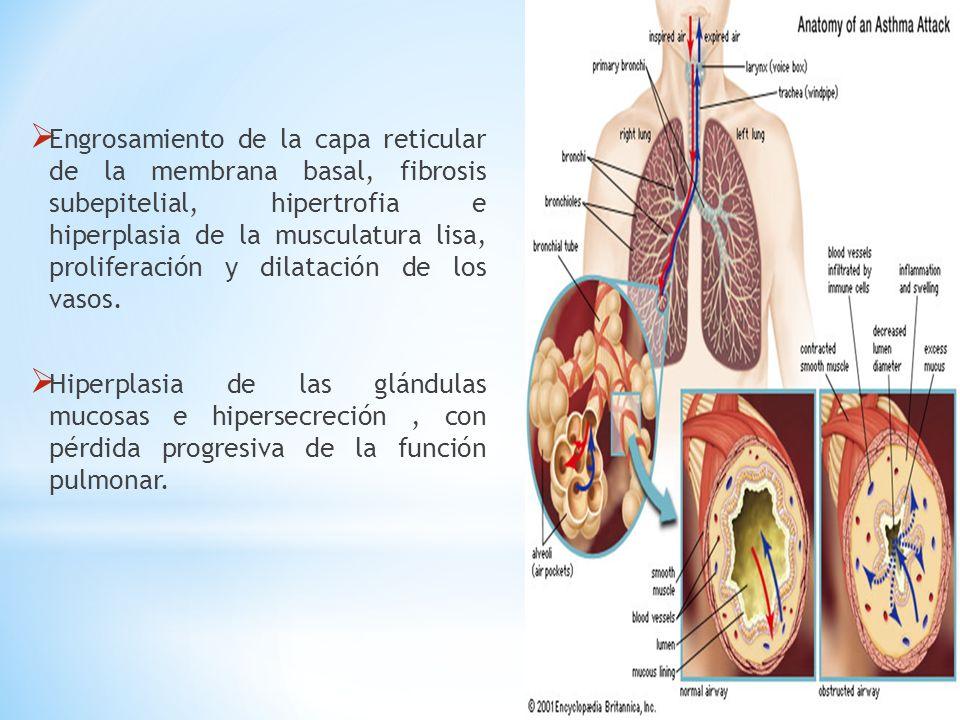 Engrosamiento de la capa reticular de la membrana basal, fibrosis subepitelial, hipertrofia e hiperplasia de la musculatura lisa, proliferación y dila
