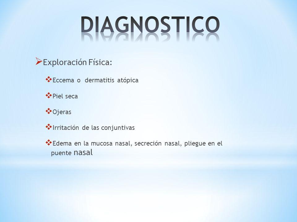 Exploración Física: Eccema o dermatitis atópica Piel seca Ojeras Irritación de las conjuntivas Edema en la mucosa nasal, secreción nasal, pliegue en e