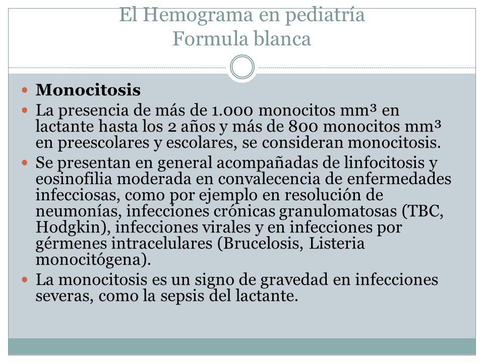 El Hemograma en pediatría Formula blanca Monocitosis La presencia de más de 1.000 monocitos mm³ en lactante hasta los 2 años y más de 800 monocitos mm