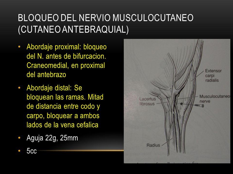 Abordaje proximal: bloqueo del N. antes de bifurcacion. Craneomedial, en proximal del antebrazo Abordaje distal: Se bloquean las ramas. Mitad de dista