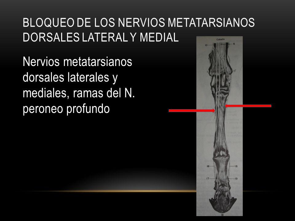 Nervios metatarsianos dorsales laterales y mediales, ramas del N. peroneo profundo BLOQUEO DE LOS NERVIOS METATARSIANOS DORSALES LATERAL Y MEDIAL