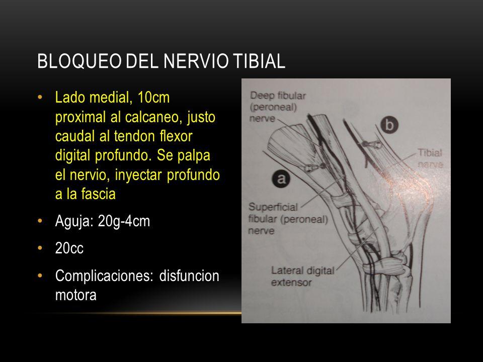 Lado medial, 10cm proximal al calcaneo, justo caudal al tendon flexor digital profundo. Se palpa el nervio, inyectar profundo a la fascia Aguja: 20g-4
