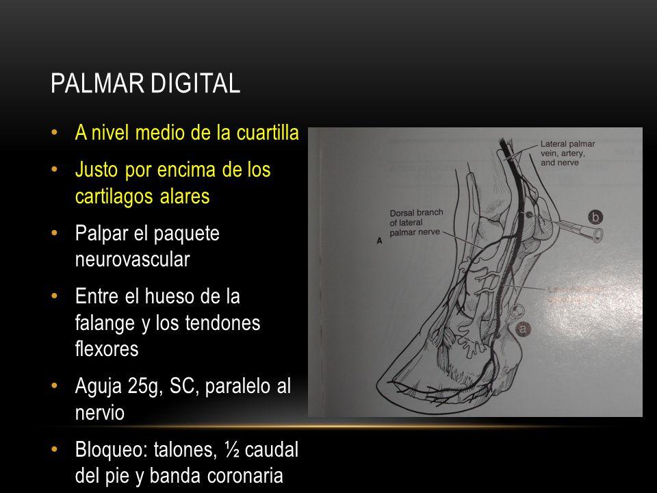 A nivel de la superficie abaxial de los sesamoides Palpar el paquete neurovascular Bloqueo de ramas nerviosas dorsales Aguja 25g, SC, paralelo al nervio 1,5-3cc Bloqueo de todo el pie distal a la inyeccion ABAXIAL DE SESAMOIDES (N.