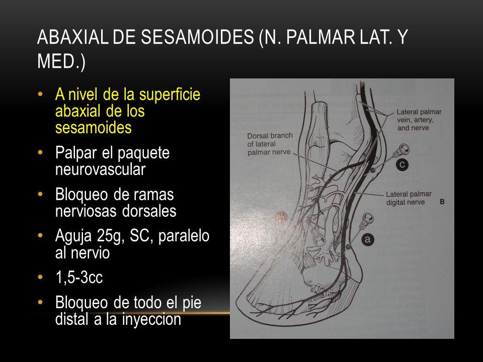 A nivel de la superficie abaxial de los sesamoides Palpar el paquete neurovascular Bloqueo de ramas nerviosas dorsales Aguja 25g, SC, paralelo al nerv