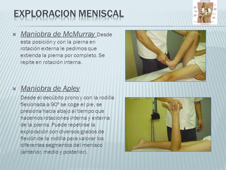 Maniobra de McMurray Desde esta posición y con la pierna en rotación externa le pedimos que extienda la pierna por completo. Se repite en rotación int