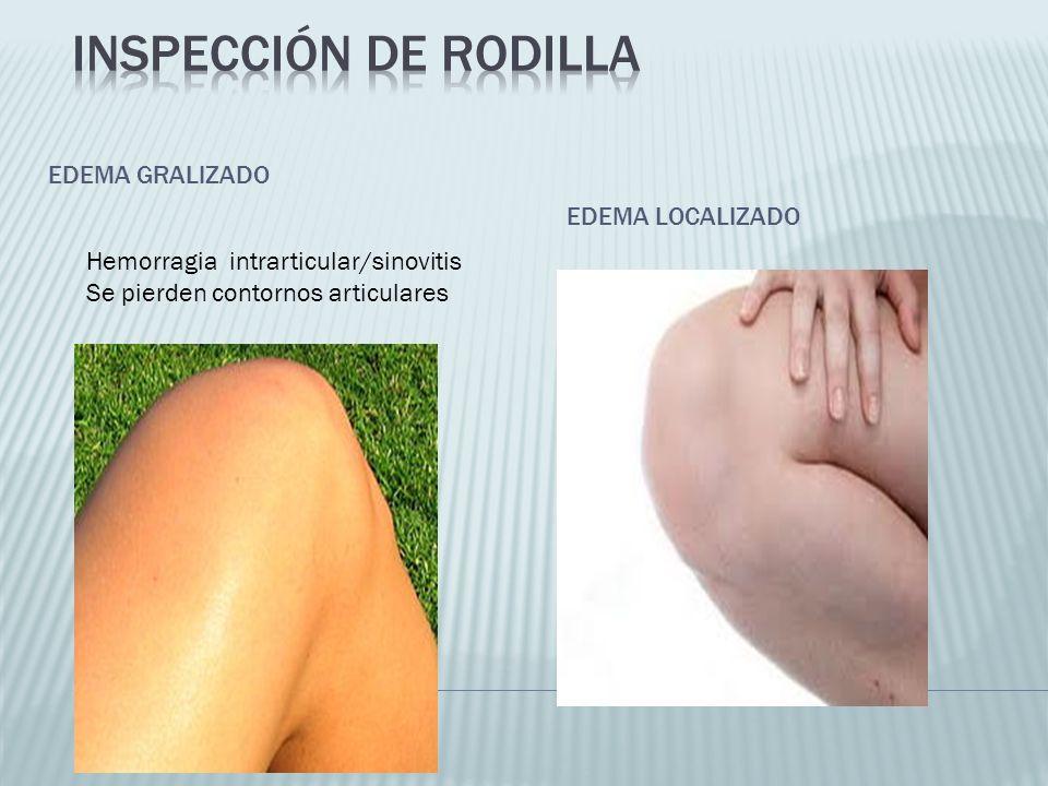 EDEMA GRALIZADO EDEMA LOCALIZADO Hemorragia intrarticular/sinovitis Se pierden contornos articulares