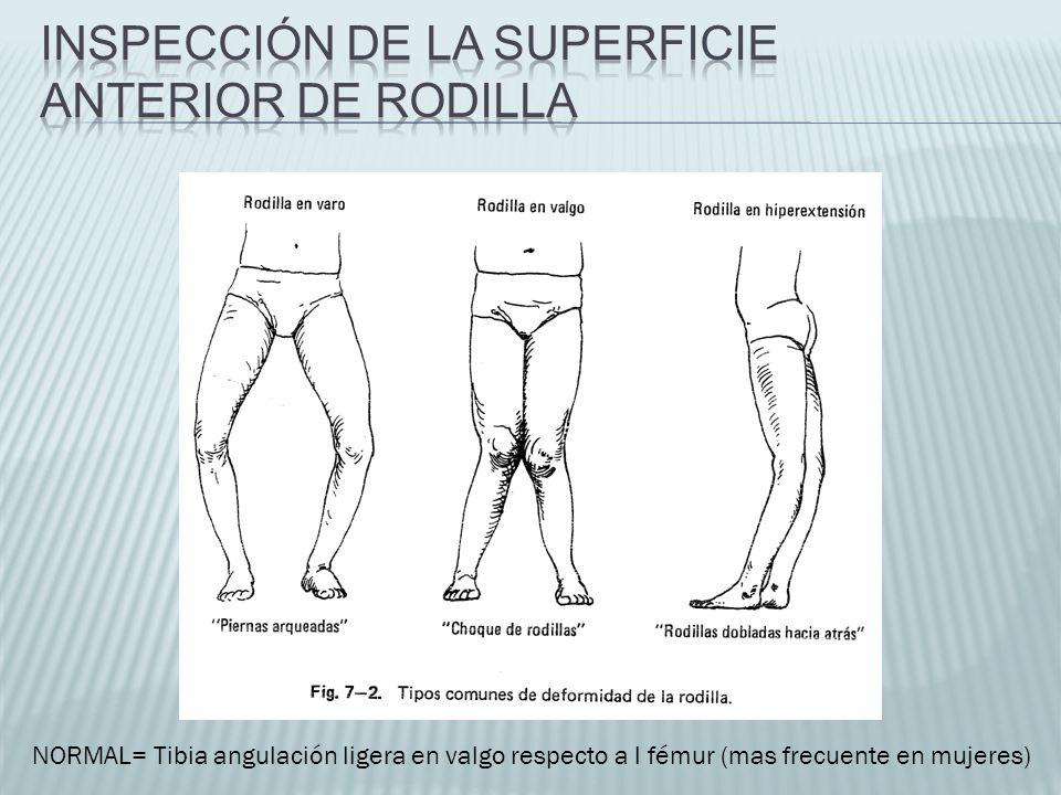 NORMAL= Tibia angulación ligera en valgo respecto a l fémur (mas frecuente en mujeres)