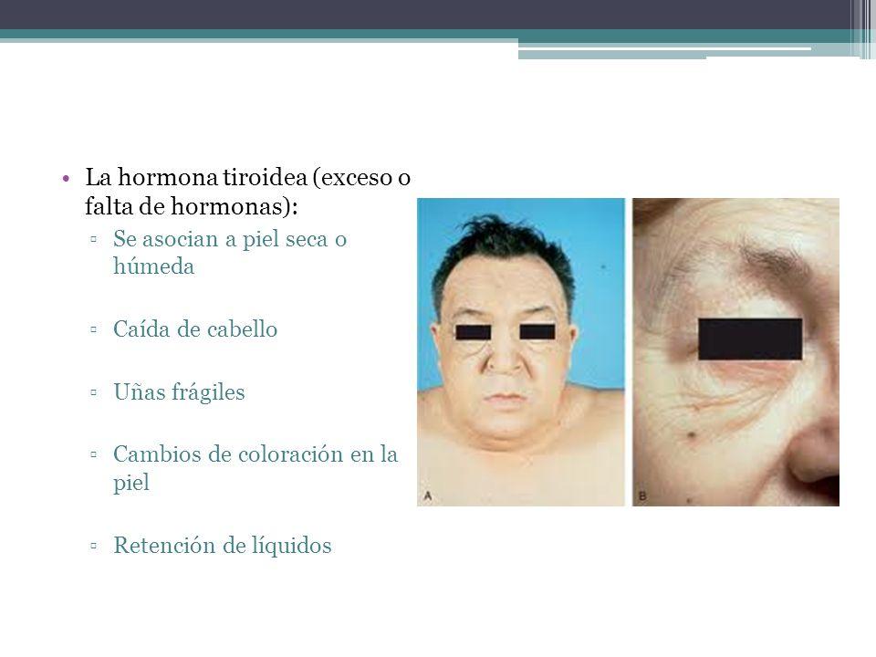 La hormona tiroidea (exceso o falta de hormonas): Se asocian a piel seca o húmeda Caída de cabello Uñas frágiles Cambios de coloración en la piel Rete