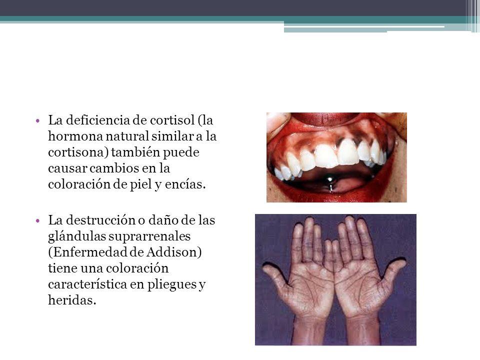 La deficiencia de cortisol (la hormona natural similar a la cortisona) también puede causar cambios en la coloración de piel y encías. La destrucción