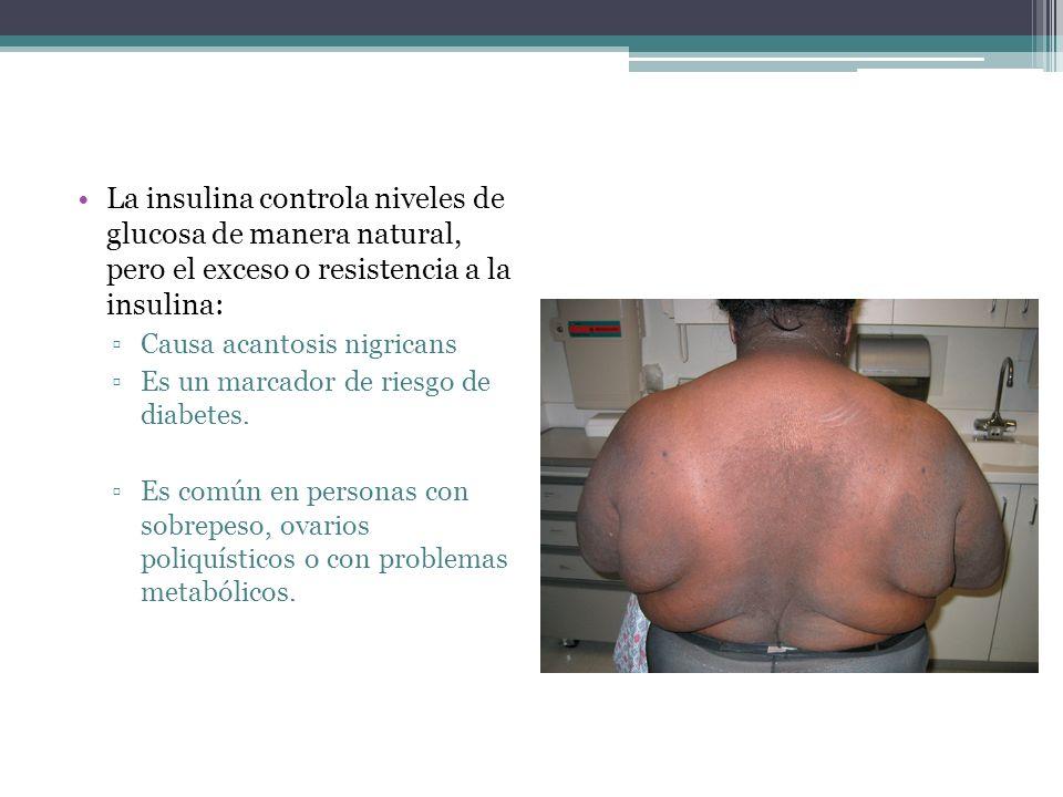 La insulina controla niveles de glucosa de manera natural, pero el exceso o resistencia a la insulina: Causa acantosis nigricans Es un marcador de rie