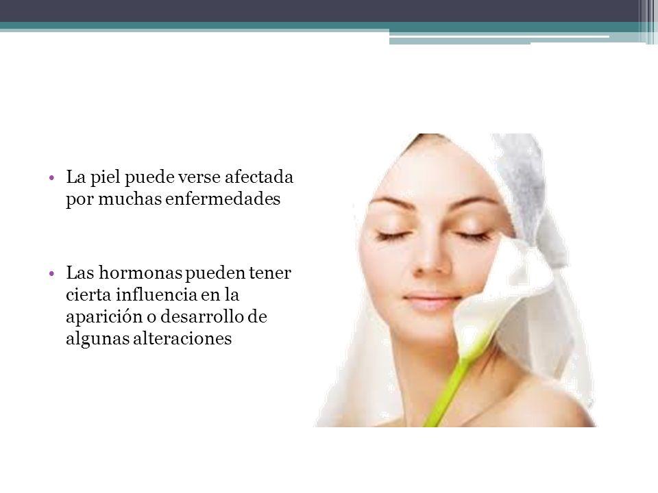 La piel puede verse afectada por muchas enfermedades Las hormonas pueden tener cierta influencia en la aparición o desarrollo de algunas alteraciones