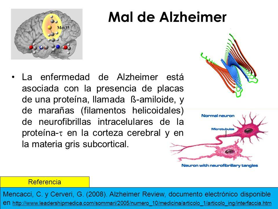 Mal de Alzheimer La enfermedad de Alzheimer está asociada con la presencia de placas de una proteína, llamada ß-amiloide, y de marañas (filamentos helicoidales) de neurofibrillas intracelulares de la proteína- en la corteza cerebral y en la materia gris subcortical.