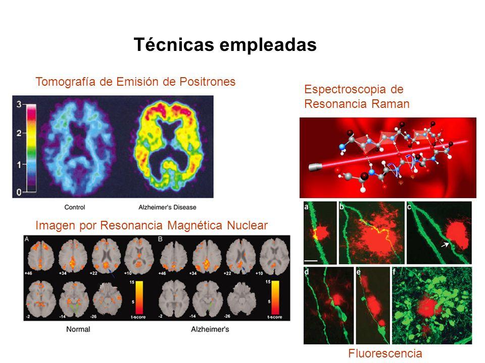 Imagen por Resonancia Magnética Nuclear Tomografía de Emisión de Positrones Espectroscopia de Resonancia Raman Fluorescencia Técnicas empleadas