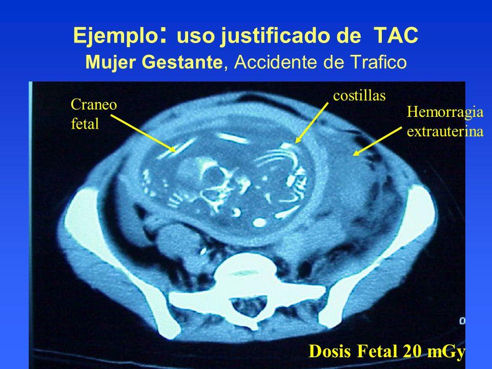 Ejemplo : uso justificado de TAC Mujer Gestante, Accidente de Trafico Craneo fetal costillas Hemorragia extrauterina Dosis Fetal 20 mGy