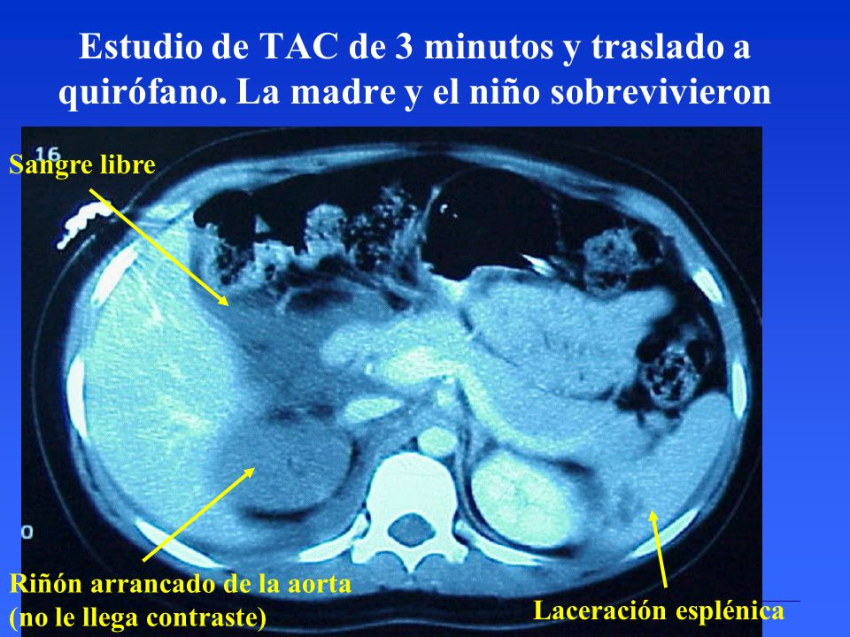 INTERNATIONAL COMMISSION ON RADIOLOGICAL PROTECTION Estudio de TAC de 3 minutos y traslado a quirófano. La madre y el niño sobrevivieron Sangre libre