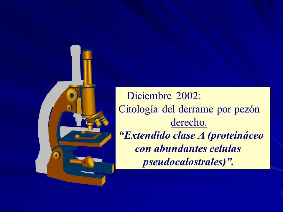 Diciembre 2002: Citología del derrame por pezón derecho. Extendido clase A (proteináceo con abundantes celulas pseudocalostrales).