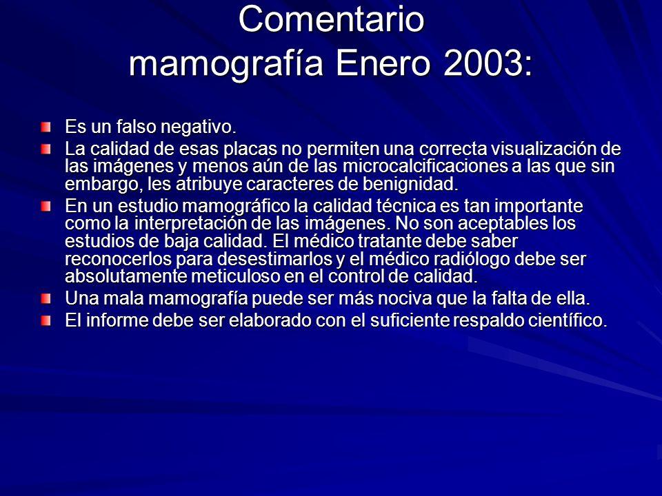 Comentario mamografía Enero 2003: Es un falso negativo. La calidad de esas placas no permiten una correcta visualización de las imágenes y menos aún d