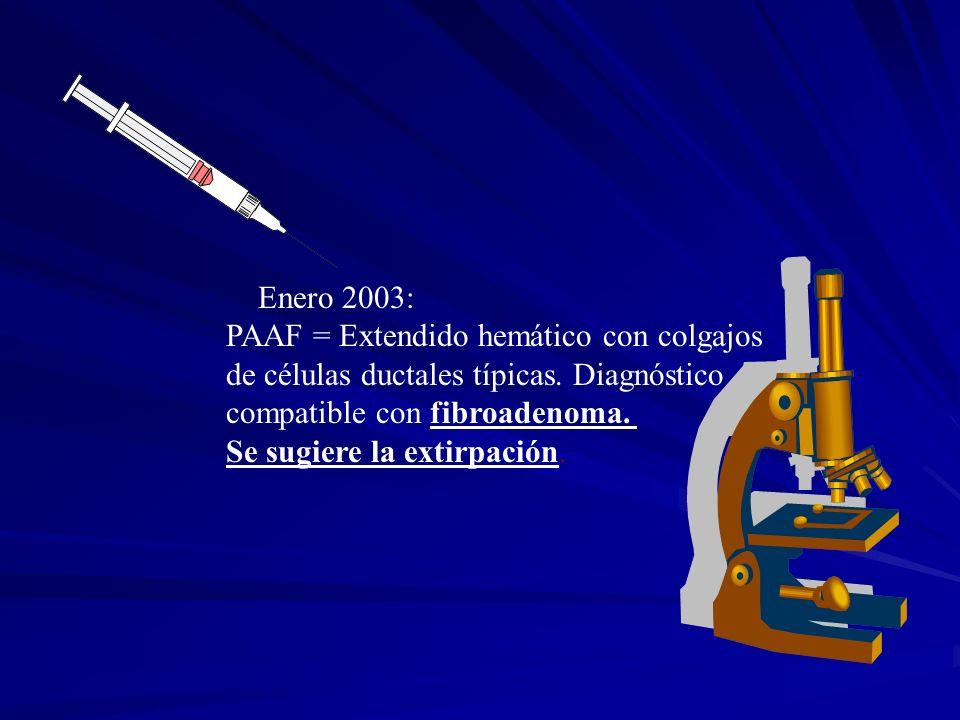 Enero 2003: PAAF = Extendido hemático con colgajos de células ductales típicas. Diagnóstico compatible con fibroadenoma. Se sugiere la extirpación.