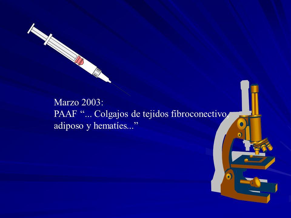 Marzo 2003: PAAF... Colgajos de tejidos fibroconectivo, adiposo y hematíes...
