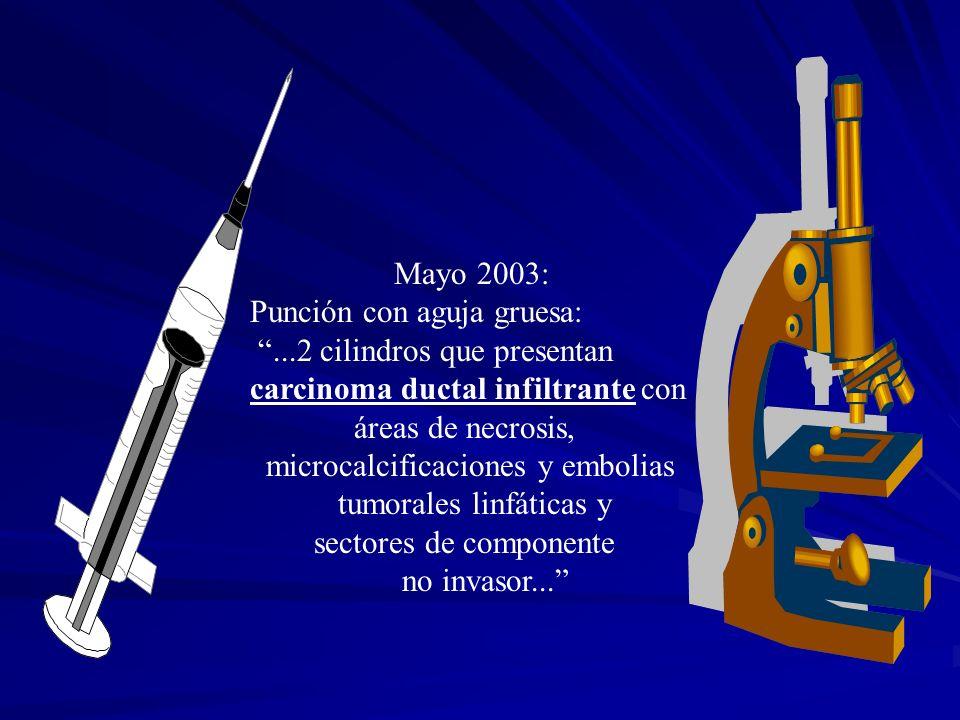 Mayo 2003: Punción con aguja gruesa:...2 cilindros que presentan carcinoma ductal infiltrante con áreas de necrosis, microcalcificaciones y embolias t