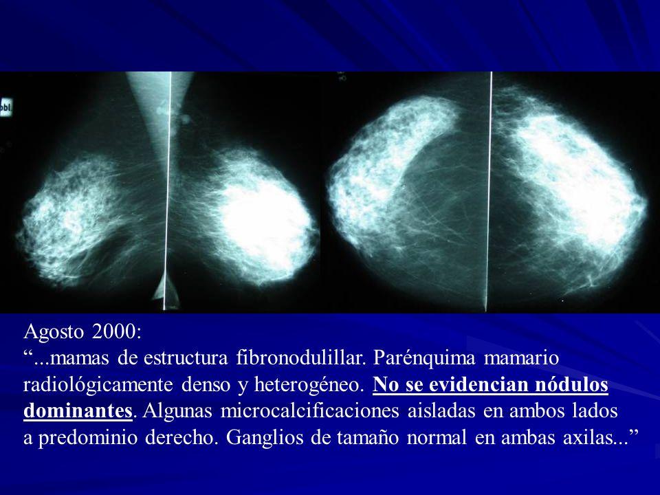 Agosto 2000:...mamas de estructura fibronodulillar. Parénquima mamario radiológicamente denso y heterogéneo. No se evidencian nódulos dominantes. Algu