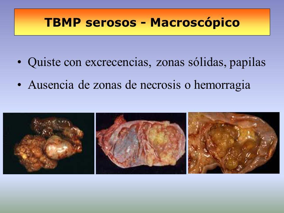 TBMP serosos - Macroscópico Quiste con excrecencias, zonas sólidas, papilas Ausencia de zonas de necrosis o hemorragia